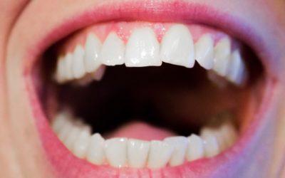 Aktualna technologia wykorzystywana w salonach stomatologii estetycznej być może spowodować, że odbierzemy śliczny uśmiech.