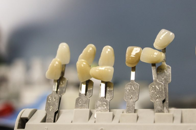Piękne zdrowe zęby również niesamowity prześliczny uśmiech to powód do płenego uśmiechu.