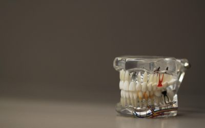 Złe postępowanie żywienia się to większe ubytki w zębach a także ich zgubę